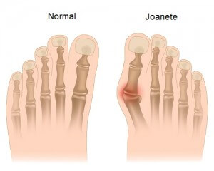 Bunion in foot, eps10